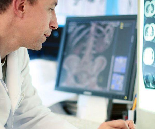 Arzt mit Röntgenbild Abdomen